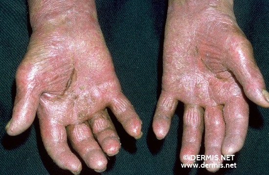 localisation: hands diagnosis: Psoriasis Arthropathica