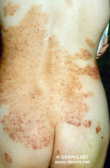 localisation: back diagnosis: Psoriasis Vulgaris, Chronic Stationary Type