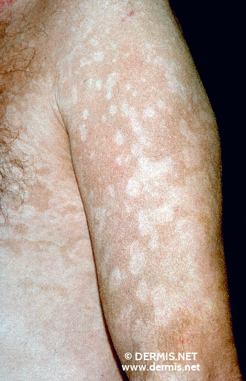 localisation: upper arms diagnosis: Psoriasis Vulgaris, Chronic Stationary Type Leukoderma