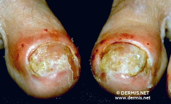 localisation: toenail proximal nail fold (toes) diagnosis: Psoriasis Vulgaris, Nail Changes