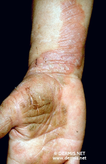 localisation: lower arms diagnosis: Psoriasis Vulgaris, Chronic Stationary Type