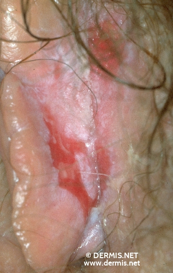 localisation: labia minora diagnosis: Lichen Planus of the Mucosa, Erosive