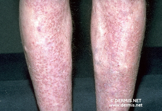 localisation: lower leg diagnosis: Lichen Amyloidosus