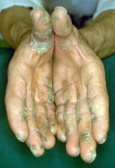 'Palmoplantar keratosis' concerns a rare variant of normal 'palmar keratosis'.