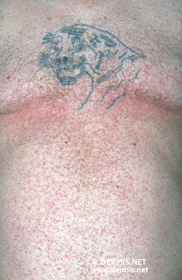 localisation: trunk diagnosis: Lichen Planus Tattooing, Intentional