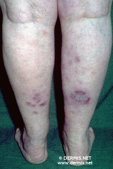 localisation: lower leg diagnosis: Sarcoidosis, Large Nodular Type