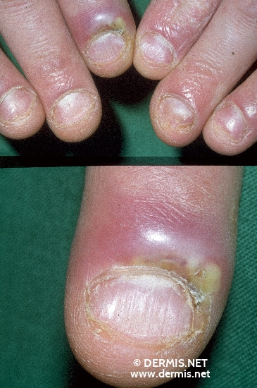 localisation: proximal nail fold of the finger diagnosis: Paronychia