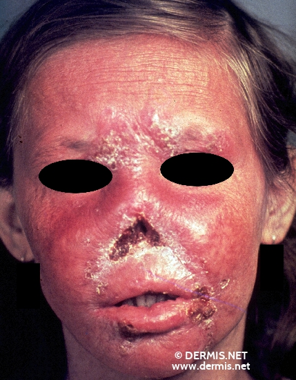 localisation: face mouth (skin) nose diagnosis: Lupus Vulgaris