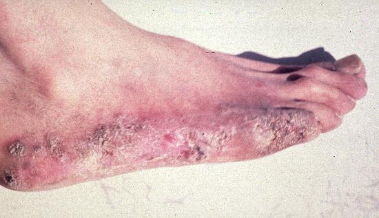 enfermedades