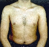localisation: upper chest, upper arms, diagnosis: Pityriasis Versicolor