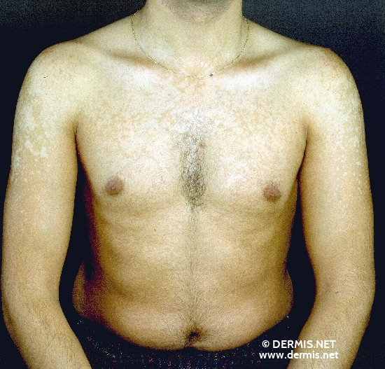 localisation: upper chest upper arms diagnosis: Pityriasis Versicolor