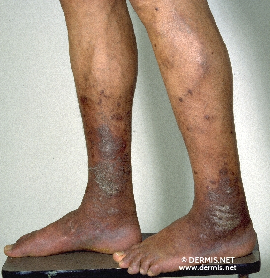 localisation: lower leg diagnosis: Acroangiodermatitis Mali
