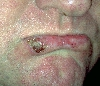 localisation: lower lip, diagnosis: Carcinoma of Lip, Actinic Cheilitis