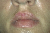 localisation: upper lip, diagnosis: Subacute Cutaneous Lupus Erythematosus SCLE