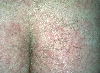 localisation: buttocks, diagnosis: Tinea Corporis