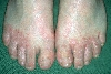 localisation: back of the feet, Interdigital region of the toes, diagnosis: Tinea Pedis