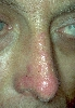 localisation: nose, diagnosis: Discoid Lupus Erythematosus (DLE)