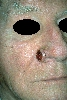 localisation: Nose angulus, diagnosis: Basal Cell Carcinoma, Ulcerating