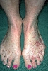 localisation: back of the feet, diagnosis: Allergic Vasculitis