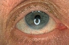 localisation: eyes, diagnosis: Melanoma of the Iris
