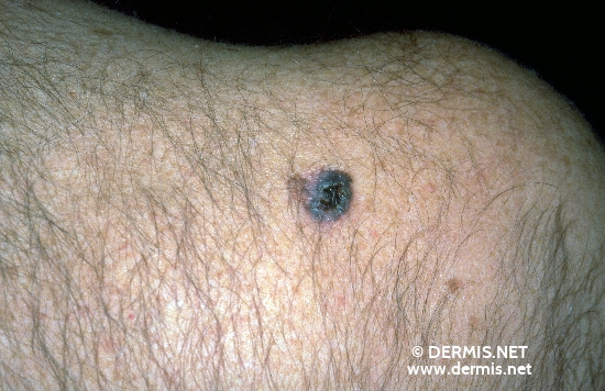 localisation: shoulder region diagnosis: Superficial Spreading Melanoma (SSM)