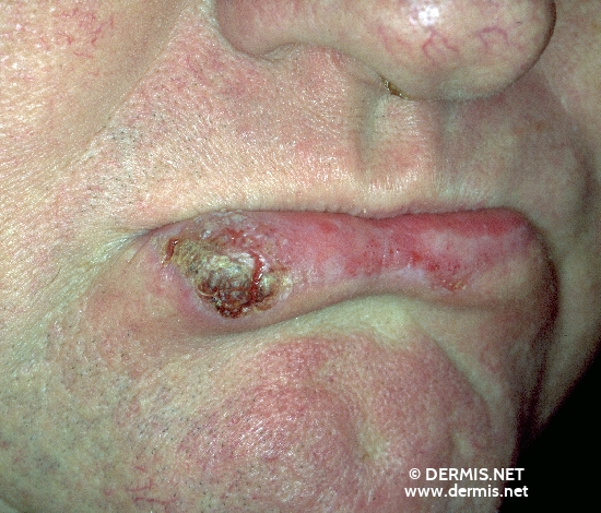 localisation: lower lip diagnosis: Carcinoma of Lip Actinic Cheilitis