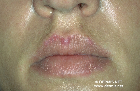 localisation: upper lip diagnosis: Subacute Cutaneous Lupus Erythematosus SCLE
