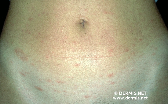 localisation: lower abdomen diagnosis: Pityriasis Rosea