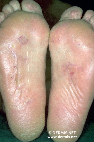 localisation: sole diagnosis: Tinea Pedis