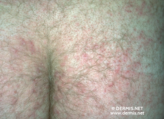 localisation: buttocks diagnosis: Tinea Corporis