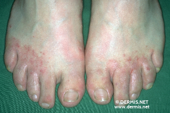 localisation: back of the feet Interdigital region of the toes diagnosis: Tinea Pedis