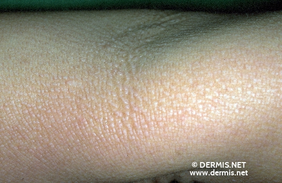 localisation: elbow flexure diagnosis: Acrokeratosis Verruciformis Hopf