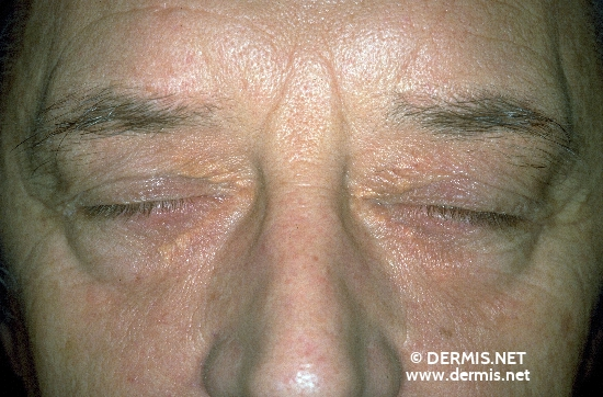 localisation: eyelids diagnosis: Xanthelasma