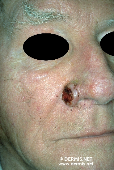 localisation: Nose angulus diagnosis: Basal Cell Carcinoma, Ulcerating
