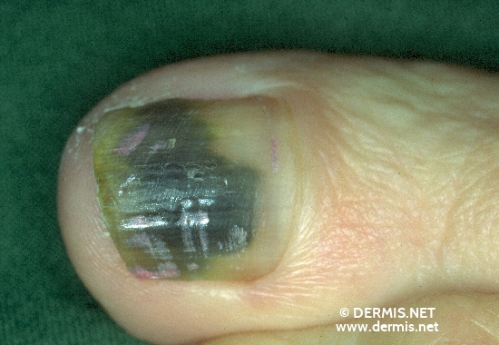 localisation: subungual (toe nail) diagnosis: Nails, Pigment Changes