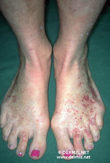 localisation: back of the feet diagnosis: Allergic Vasculitis
