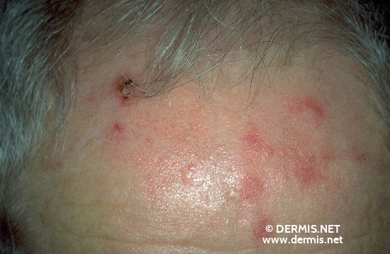 localisation: forehead diagnosis: Actinic Keratosis
