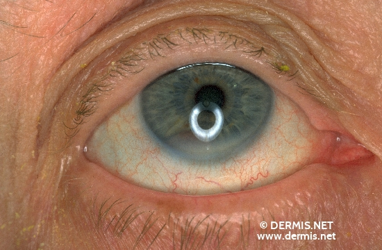 localisation: eyes diagnosis: Melanoma of the Iris