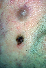 localisation: cheek, diagnosis: Lentigo Maligna Melanoma (LMM), Nevocytic Nevus