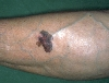localisation: lower leg, diagnosis: Superficial Spreading Melanoma (SSM)