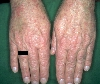 localisation: back of the hands, diagnosis: Drug Eruption