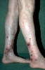 localisation: Unterschenkel, Diagnose: Vasculitis allergica