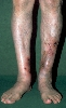 localisation: lower leg, diagnosis: Allergic Vasculitis