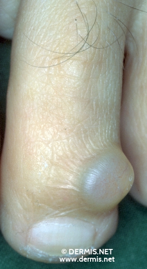 localisation: toe diagnosis: Hidrocystoma