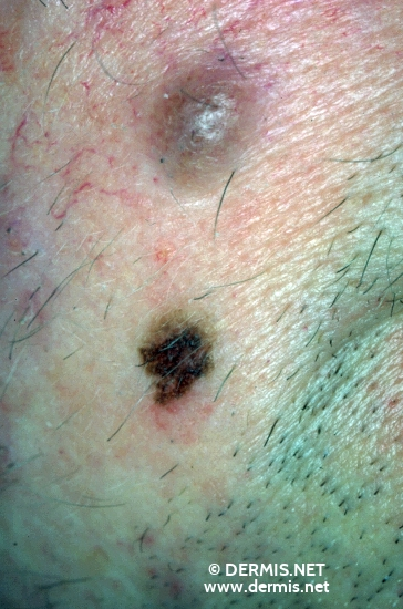 localisation: cheek diagnosis: Lentigo Maligna Melanoma (LMM) Nevocytic Nevus