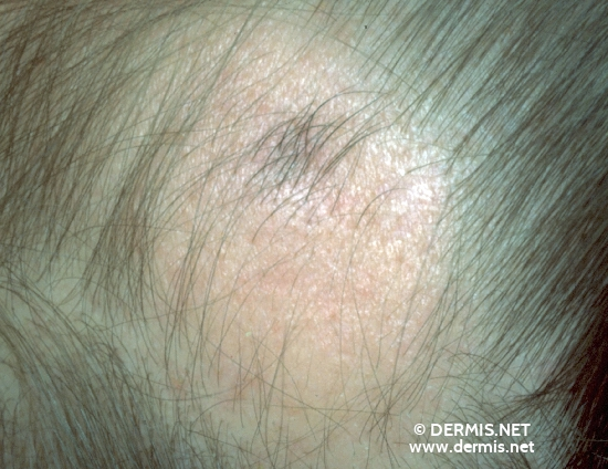 localisation: frontal scalp diagnosis: Localized Scleroderma