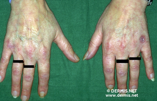 diagnosis: Chilblain Lupus