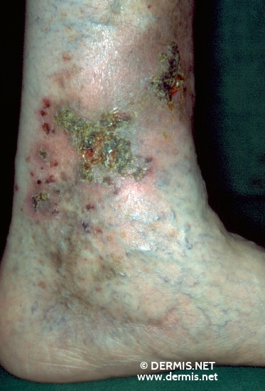 localisation: lower leg diagnosis: Allergic Vasculitis