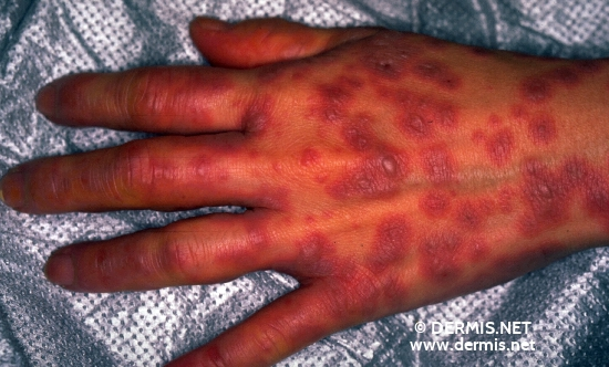 localisation: hands diagnosis: Stevens-Johnson Syndrome