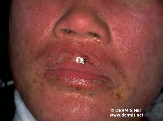 localisation: cheek diagnosis: Stevens-Johnson Syndrome